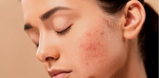 AZS - atopowe zapalenie skóry